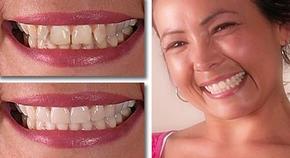 виниры- лёгкий путь восстановления улыбки