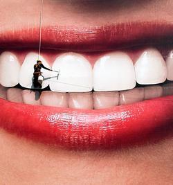 отбеливание зубов - красота доступная каждому